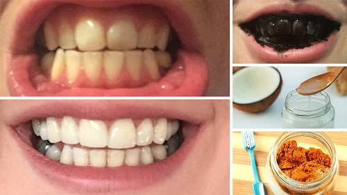 How-to-Make-Your-Teeth-Whiter-and-Stronger